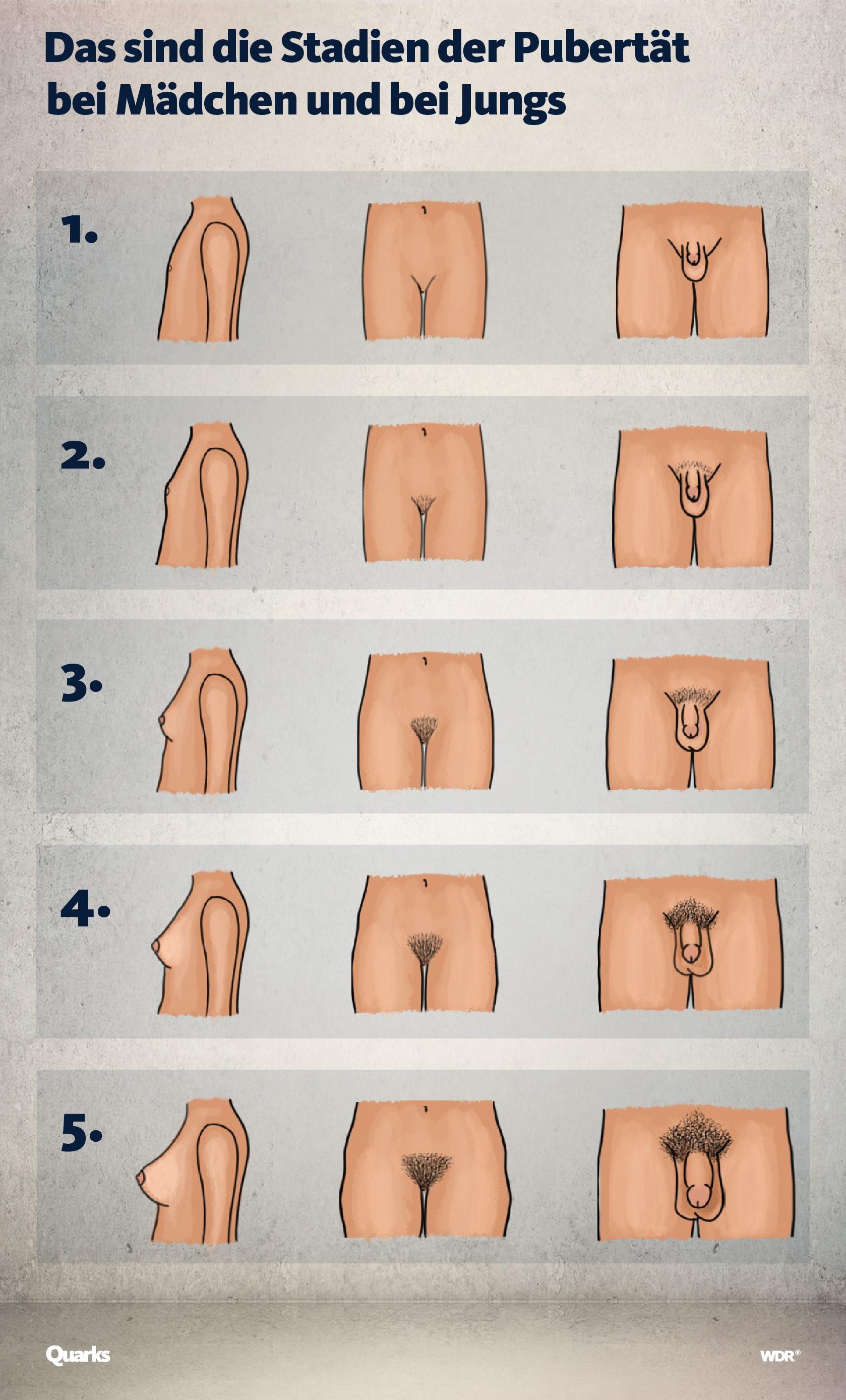 Grafik mit den fünf Stadien der Pubertät