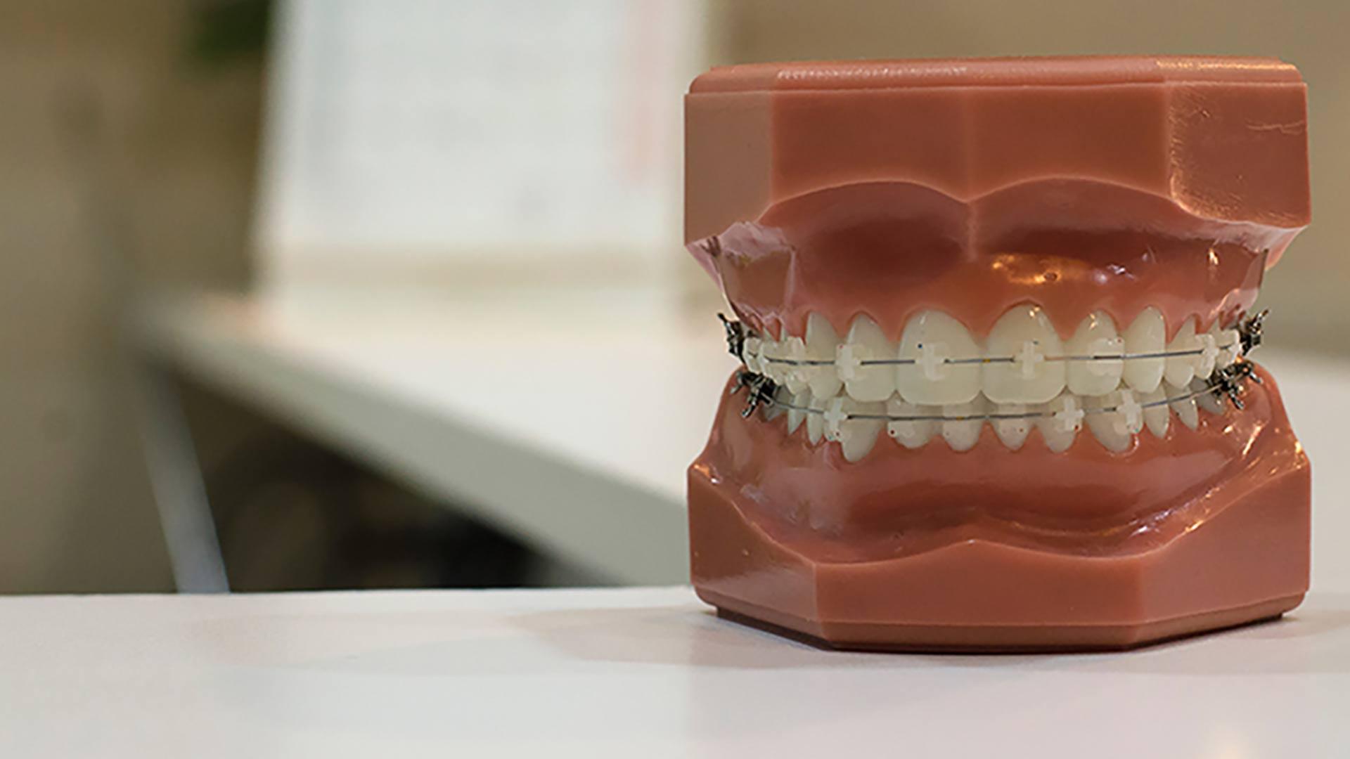 Ein künstliches Gebissmodell mit einer festen Zahnspange.